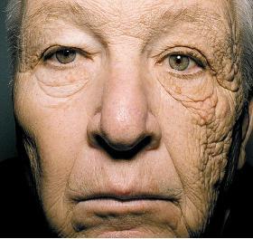 紫外線を受け続けた人の顔