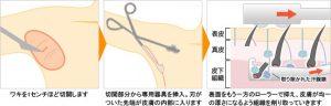 img_guide_wakiga_03